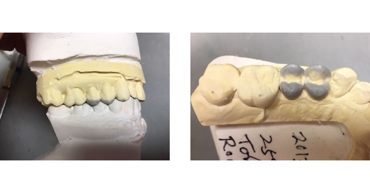 a side view  and a top view of a molded molar section