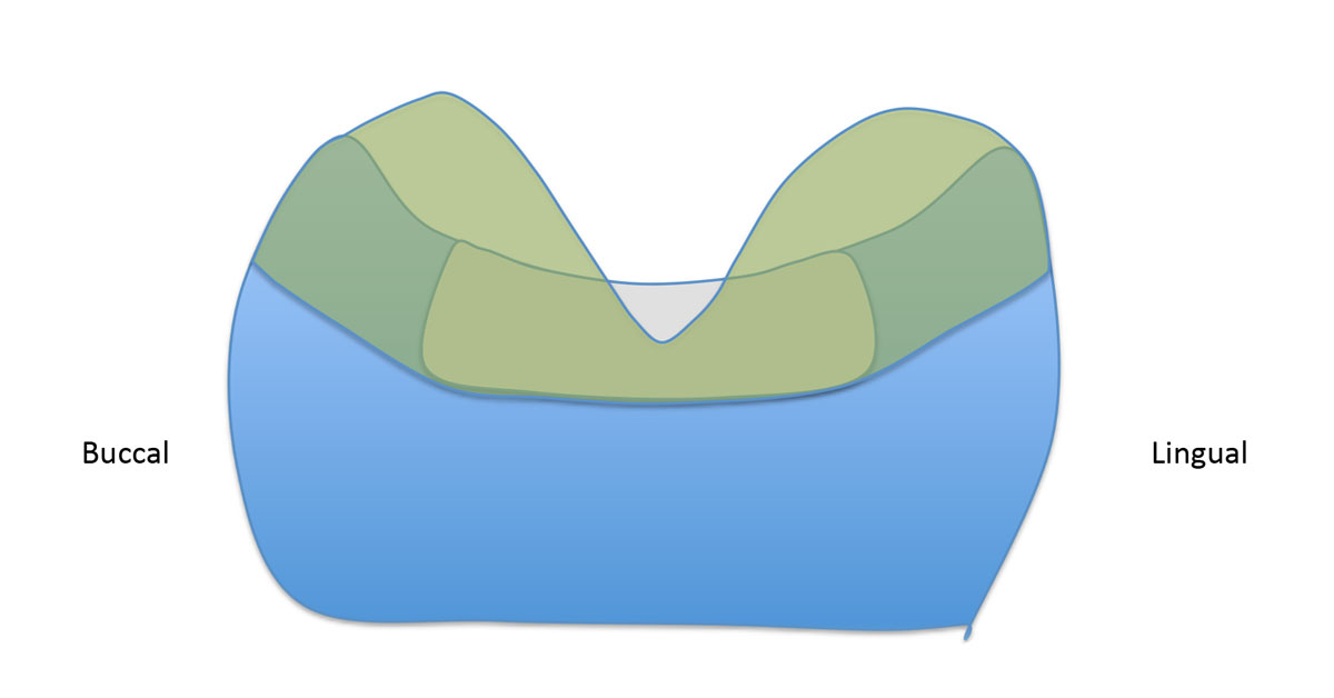 diagram showing buccal and Lingual with a large v-shaped area at the top over the 1.5mm gap