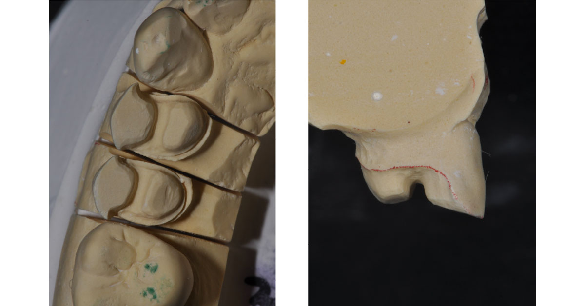 top view of molded teeth, side view of a single tooth with a ridge through the middle
