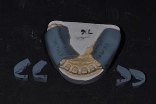 tooth preparation vertical index