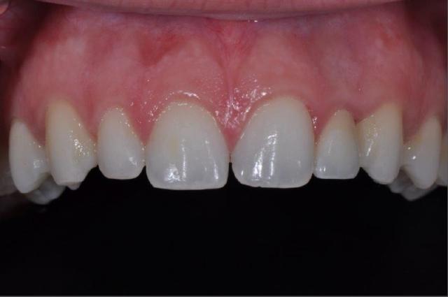 final result implant restoration