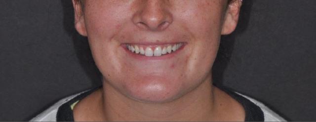 final implant restoration