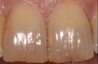 dental craze lines