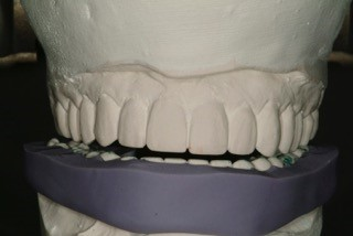 incisal edge guide of provisionals