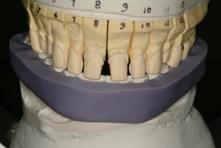 incisal edge guide with master model