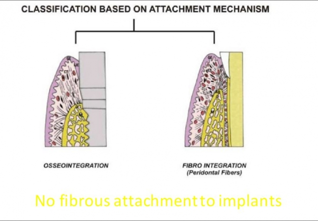 implant attachment