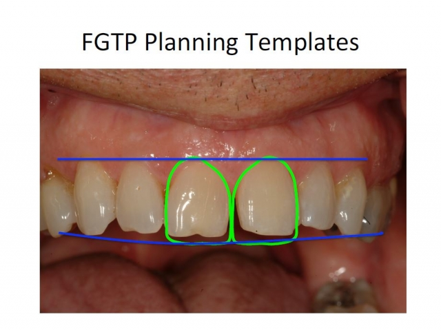 facially generated treatment planning templates