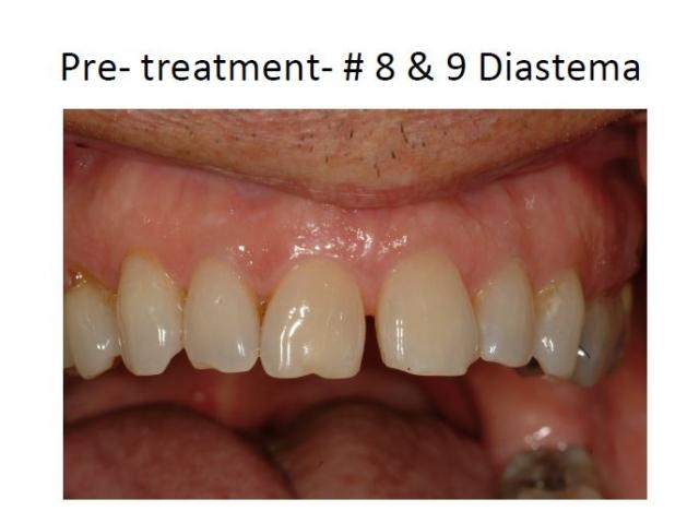 pre treatment diastema