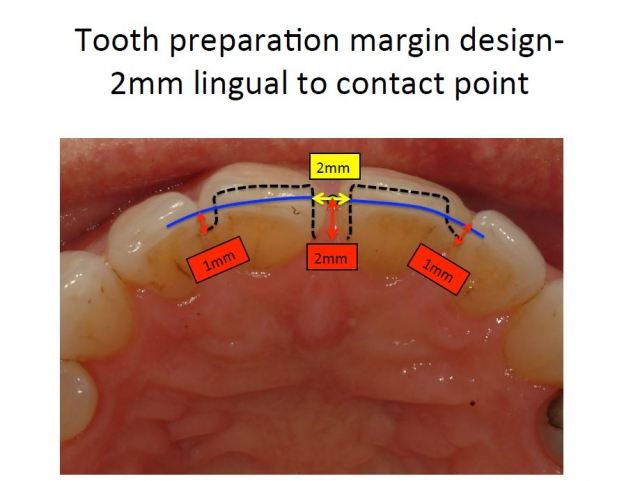 tooth preparation margin design