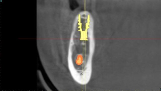 digital surgical guide for dental implants