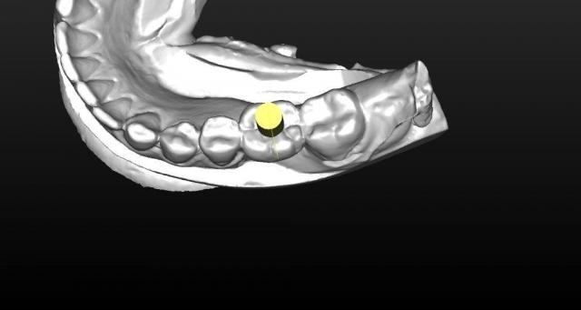 restorative treatment planning for implants dental ce