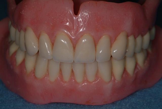wearing dentures during sleep