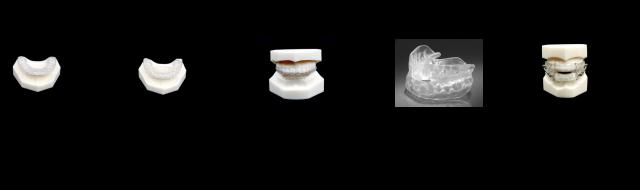 5 categories of dental nightguards