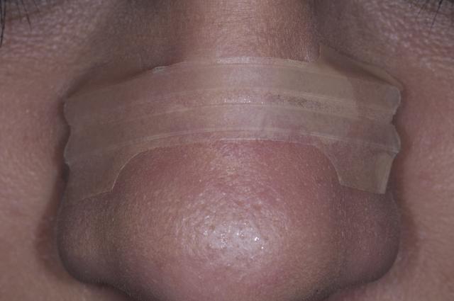 nasal breathing airway