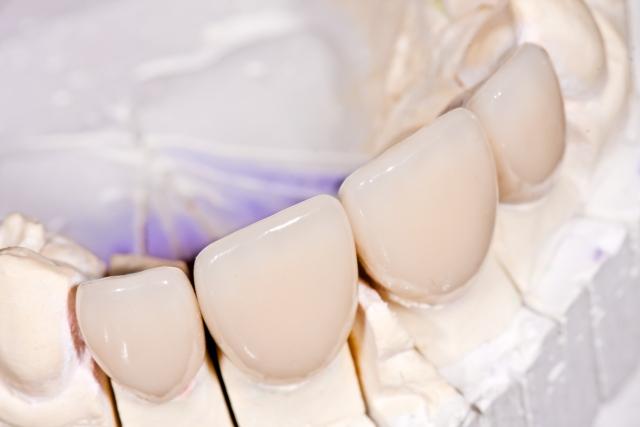 preparing dental restorations figure 1