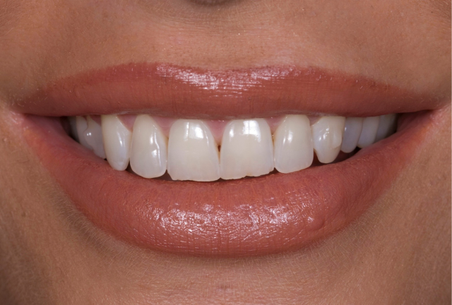 close up smile photo