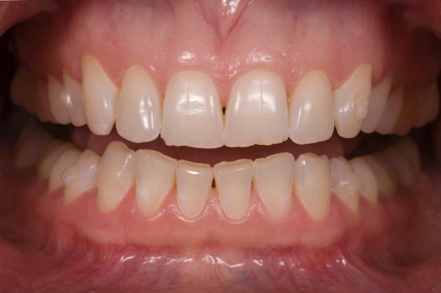 lips retracted teeth apart photo