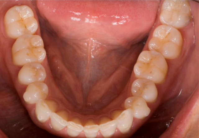 mandibular arch photo