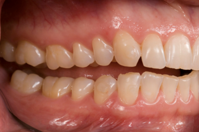 right lateral teeth apart photo