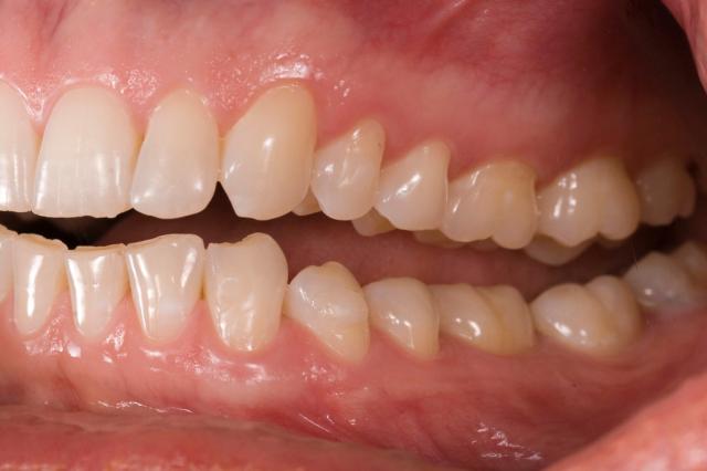 left lateral teeth apart photo