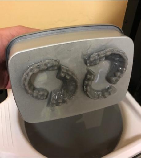 3d printing dentistry