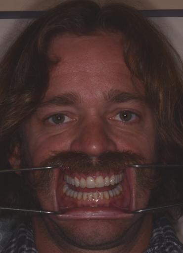 lips retracted teeth apart dental photography