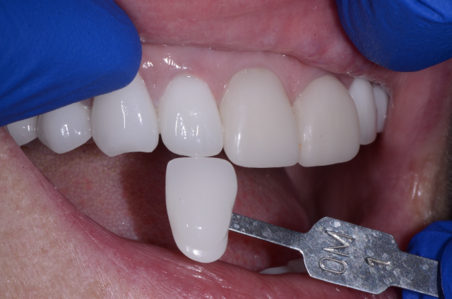 preoperative tooth shade photo