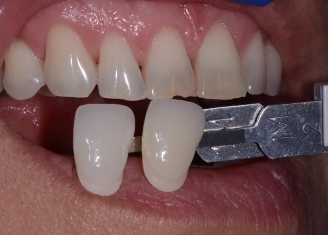 preoperative dental shade photo