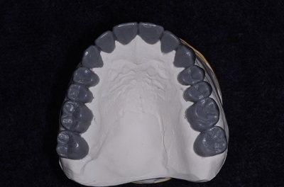 dental ce how to provisionalize an arch using wax up