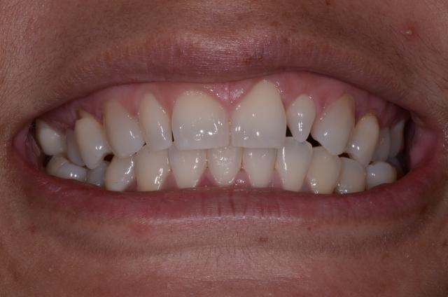 peg laterals restorations