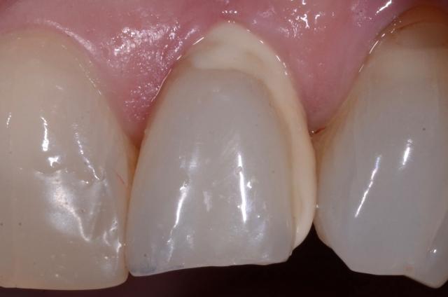 pre op dental patient photo cement