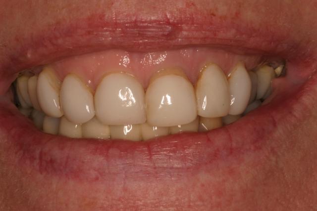 dental care figure 4