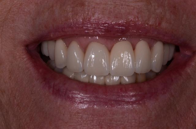 dental care figure 1