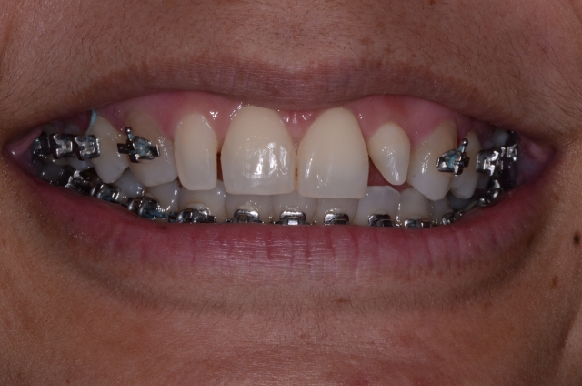 dental patient mid-orthodontics