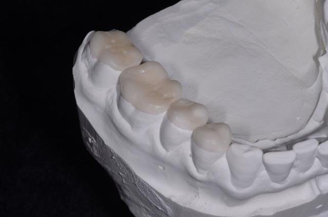 dental restoration model