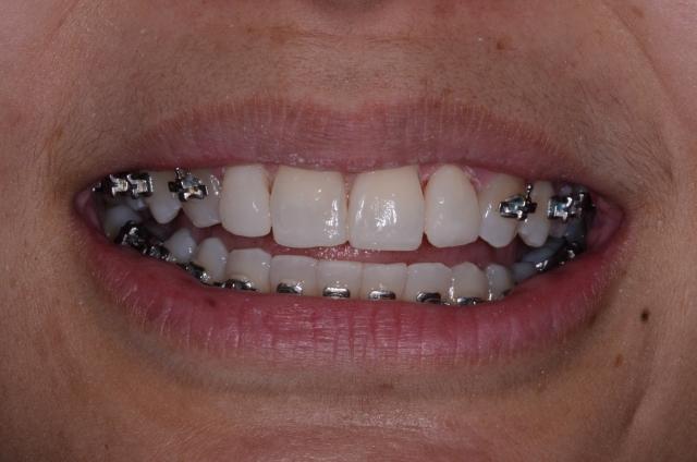 bonded orthodontic treatment
