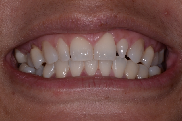 resizing orthodontic case