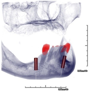 cbct imaging implant placement