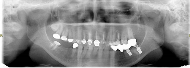 conventional panoramic radiograph dentistry