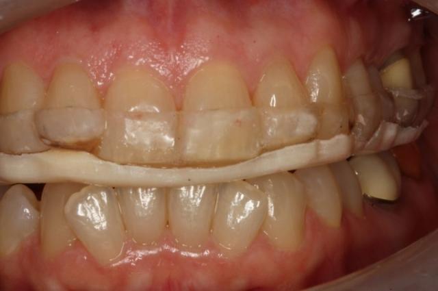 anterior bite plane to full arch splint conversion