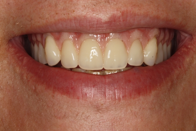 dentures esthetic tooth position