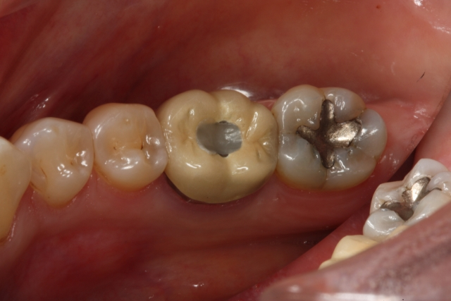 Dental magnification photo