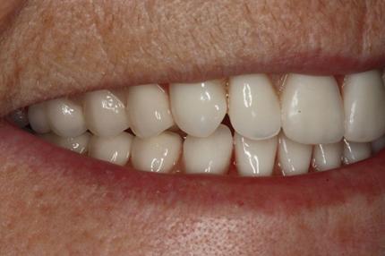 poster denture teeth figure 1