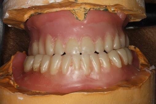 posterior denture teeth figure 3