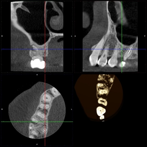 vertical fracture x ray