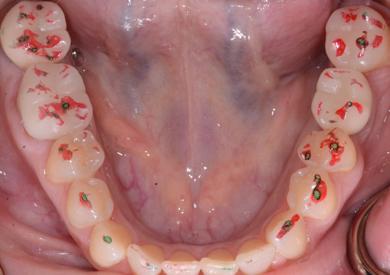 digital implant tissue development figure 9