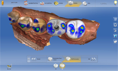 digital implant tissue development figure 4