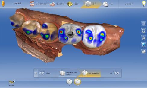 digital implant tissue development figure 4