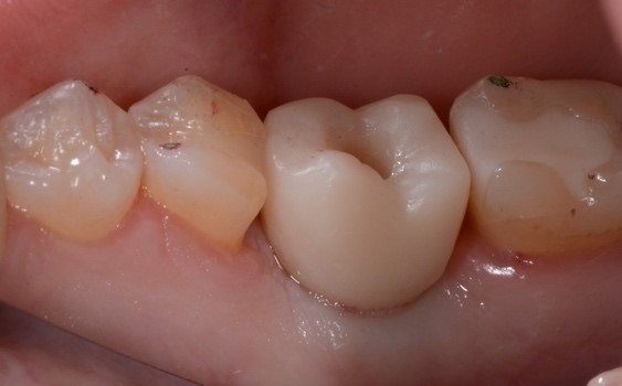 digital implant tissue development figure 5