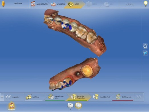 digital implant tissue development figure 8